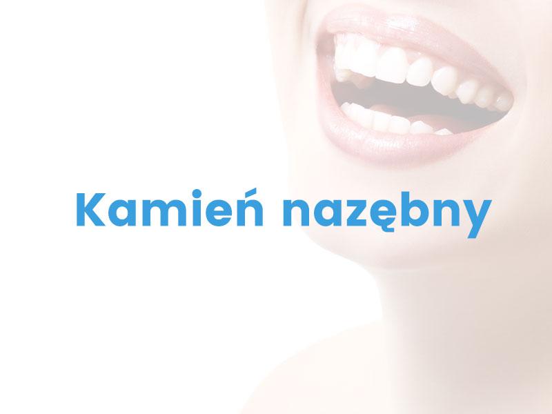 kamien-nazebny-warszawa-stomatolog-ursynow